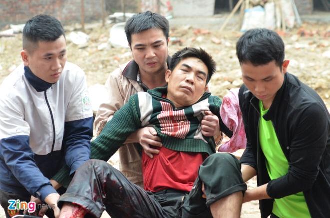 Bac Ninh: Dan phat no, mot nam thanh nien bi thuong hinh anh 1