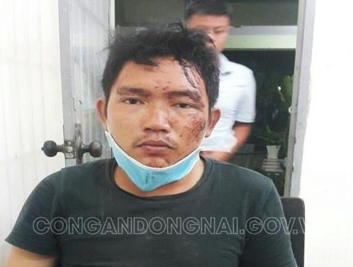 Ga trai dung dao khong che dong nghiep de cuop 600 trieu hinh anh 1 2020_04_05.19_09_13.jpg