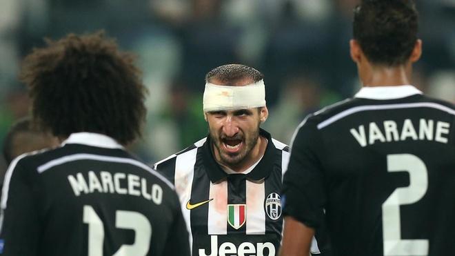 Nhung ly do khien Real Madrid thua tran truoc Juventus hinh anh