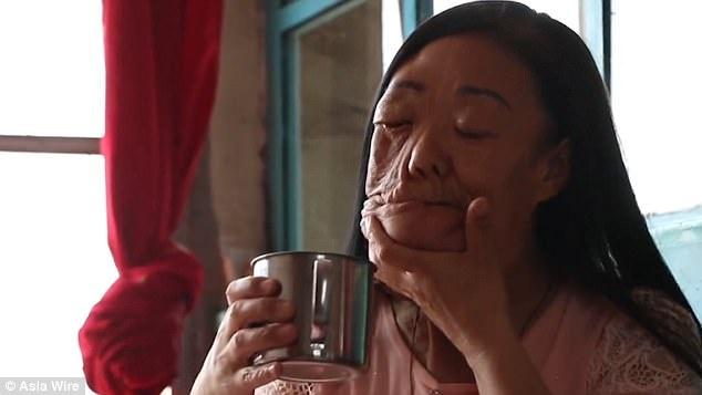Khuon mat di dang cua nguoi phu nu Trung Quoc mac benh hiem hinh anh