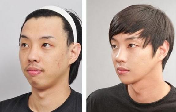 "Xu huong phau thuat tham my thanh ""cau be xinh dep"" cua dan ong Han Quoc anh 2"