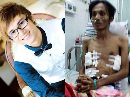 102 ngay gianh lai su song cua benh nhan tran dich mang phoi hinh anh 1 Thái Lan Viên trước khi bị bệnh và sau ca phẫu thuật. Ảnh: NLĐ