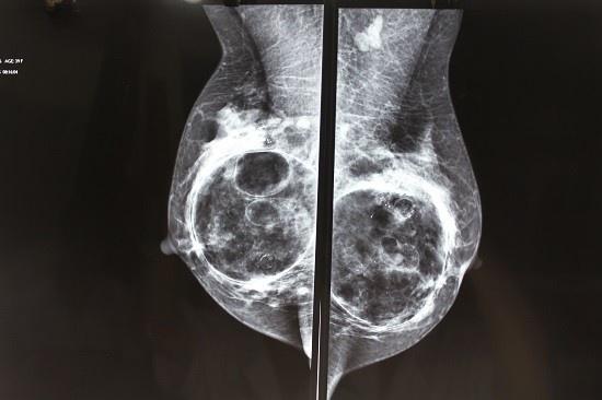 Nang nguc hong: Xu ly sao? hinh anh 1 Tuyến vú bị biến dạng với các cục, khối do nâng ngực bằng chất làm đầy
