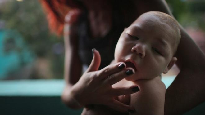 virus Zika xam nhap Viet Nam anh 1
