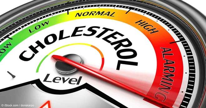 Nguyen nhan pho bien khien cholesterol tang cao hinh anh 1