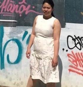 Cô gái Hà Nội giảm 19 kg sau khi phẫu thuật thu nhỏ dạ dày