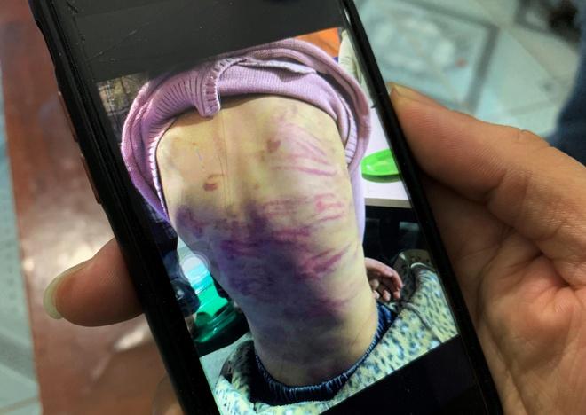 Kết quả hình ảnh cho Hà Nội yêu cầu điều tra vụ bé gái 12 tuổi bị mẹ bạo hành