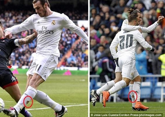 Bien phap chua chan thuong ky di cua Gareth Bale hinh anh 1