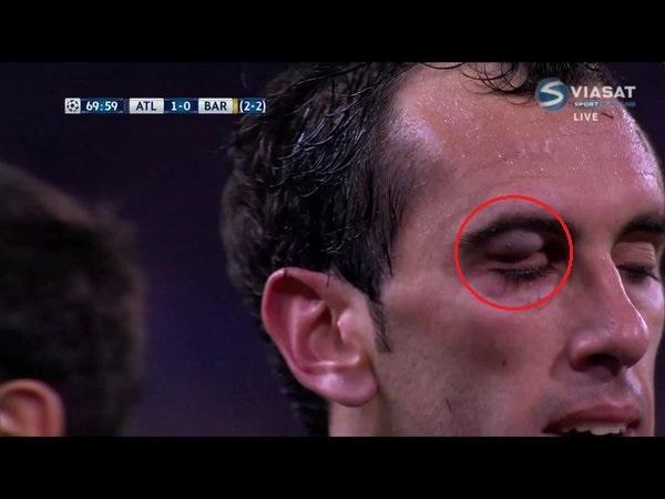 Trong tai la tham hoa cua tran Atletico vs Barcelona hinh anh 1