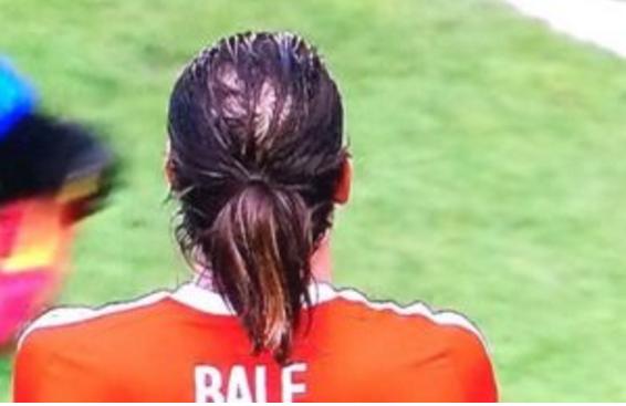 Toc rung nhanh, Bale dang bi hoi dau nang hinh anh