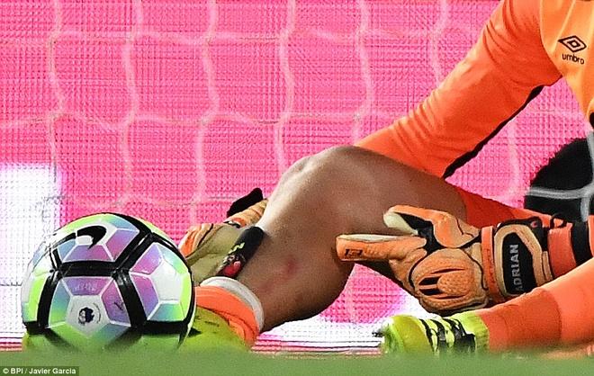 Diego Costa dap vao chan thu mon West Ham hinh anh 2