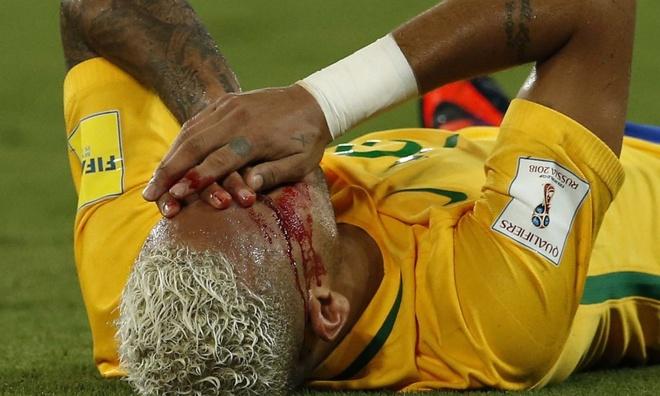 Neymar pho dien ky thuat anh 1