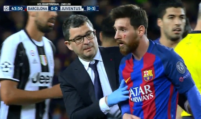 Messi nga lon co, dap mat xuong san va chay mau hinh anh 4