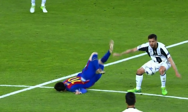 Messi nga lon co, dap mat xuong san va chay mau hinh anh 3