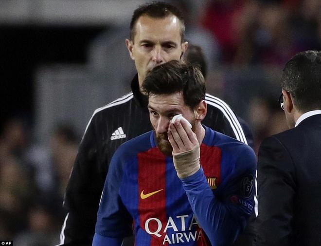 Messi nga lon co, dap mat xuong san va chay mau hinh anh 5