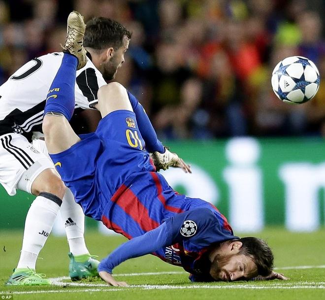 Messi nga lon co, dap mat xuong san va chay mau hinh anh 2