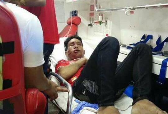 CDV Myanmar bi danh sung mat sau tran thua Malaysia hinh anh