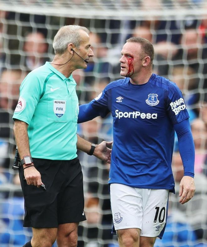 Rooney chay mau mat dam dia sau pha thuc cui cho cua doi thu hinh anh 3