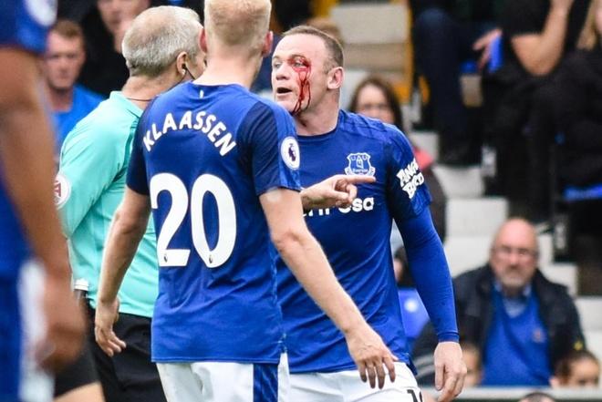 Rooney chay mau mat dam dia sau pha thuc cui cho cua doi thu hinh anh 4