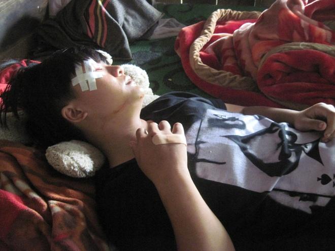 Phut thieu nu bi 4 thanh nien danh hoi dong den chet hinh anh 2 Mắt phải của Phượng bị sưng không thể mở ra được.