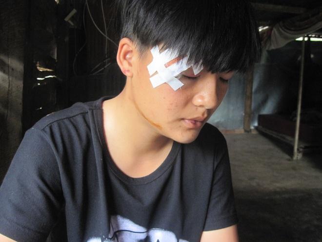 Bat 2 nghi can danh hoi dong thieu nu den chet hinh anh 1 Chị Phượng bị đánh mắt sưng vù không thể mở được.