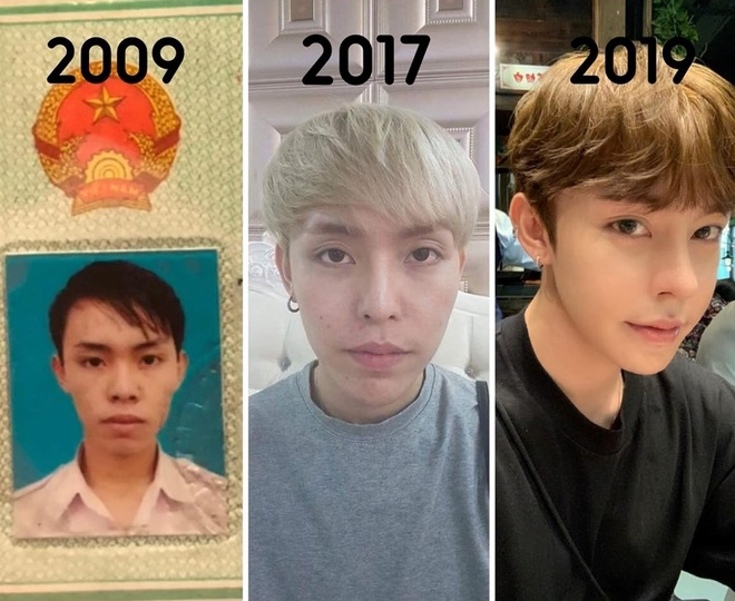 Chàng trai Đà Nẵng phẫu thuật thẩm mỹ 9 lần trong 10 năm