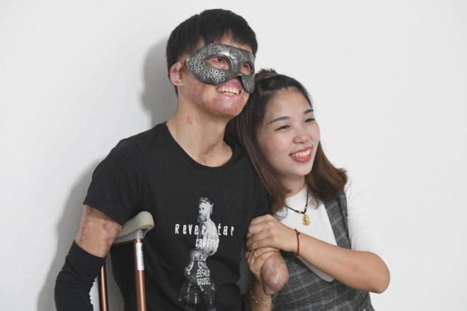 Chuyen tinh cua co gai Trung Quoc va chang trai guong mat bien dang hinh anh 3 3_1.jpg
