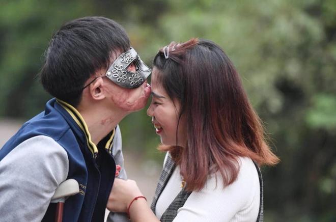 Chuyen tinh cua co gai Trung Quoc va chang trai guong mat bien dang hinh anh 4 4.jpg