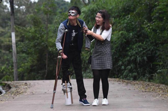 Chuyen tinh cua co gai Trung Quoc va chang trai guong mat bien dang hinh anh 6 6.jpg