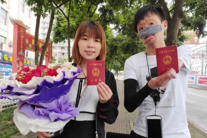 Chuyen tinh cua co gai Trung Quoc va chang trai guong mat bien dang hinh anh 7 7.jpg