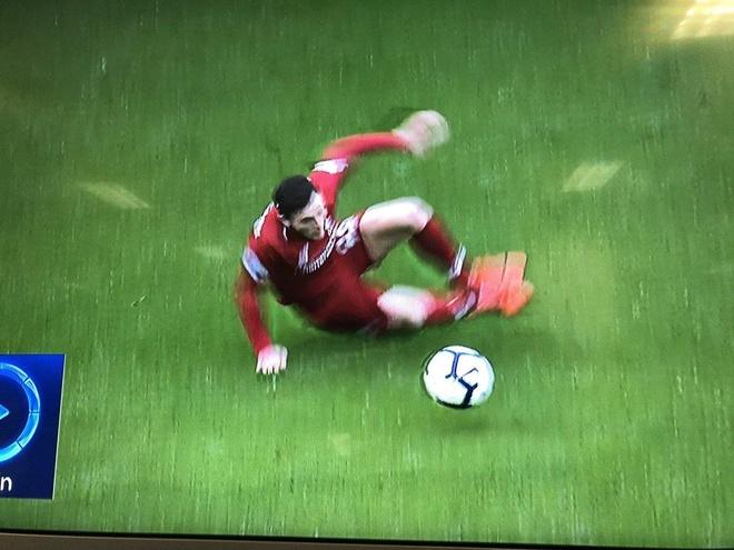 CDV bat cuoi truoc pha truot chan cua tru cot Liverpool hinh anh 1