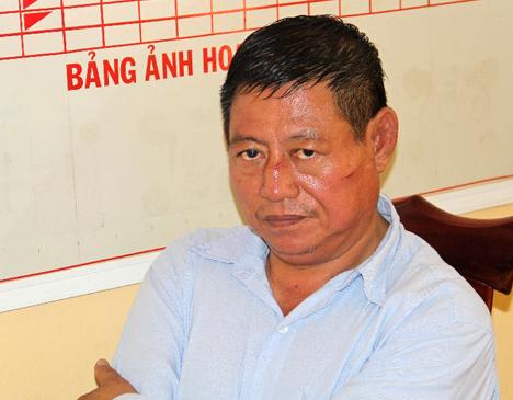 Truy to trung ta cong an Campuchia ban chet nguoi hinh anh