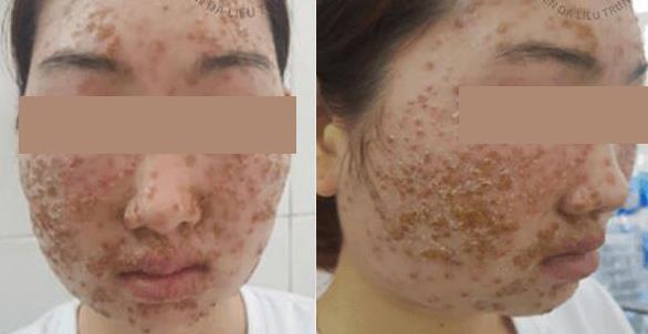 Thiếu nữ bong da từng mảng sau khi dùng bột rửa mặt