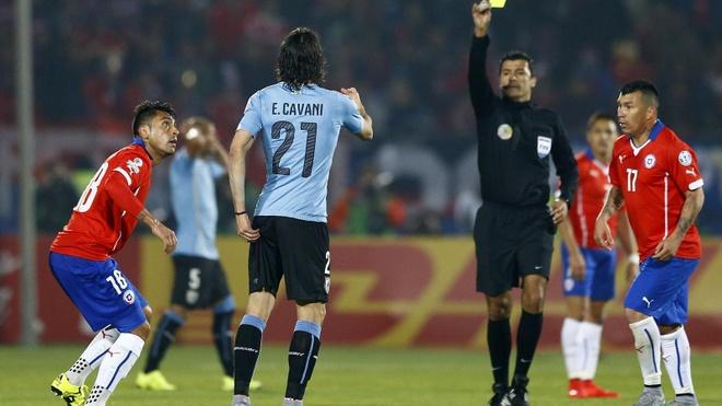 'Argentina huong loi khi doi thu gap chan thuong' hinh anh 2 Chiếc thẻ đỏ gây tranh cãi của Edinson Cavani. Ảnh: Eurosport.