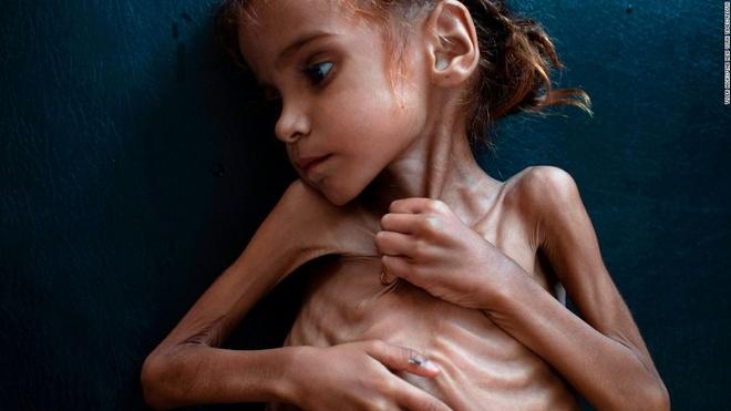 Bức ảnh chụp Amal Hussain, 7 tuổi, bị suy dinh dưỡng nặng. Ảnh: