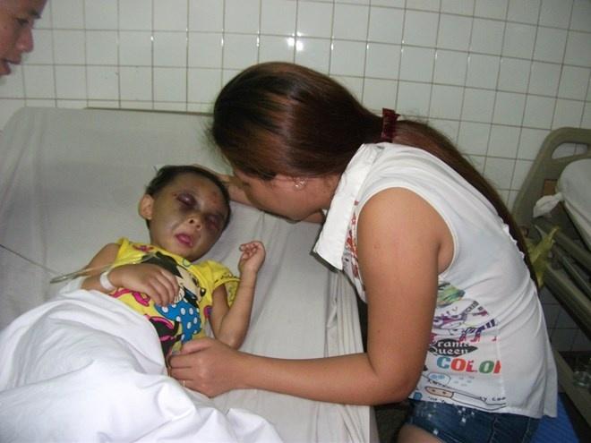 Be gai 4 tuoi bi me va duong danh chan dong nao hinh anh 1 Bé Ngân đang cấp cứu điều trị tại Bệnh viện Đa khoa Bình Dương.