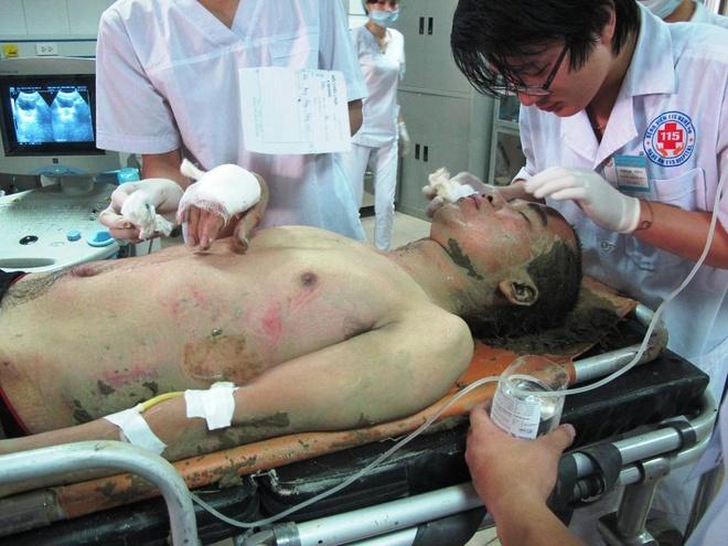 Nạn nhân bị thương đang được cấp cứu tại bệnh viện đa khoa 115 Nghệ An.