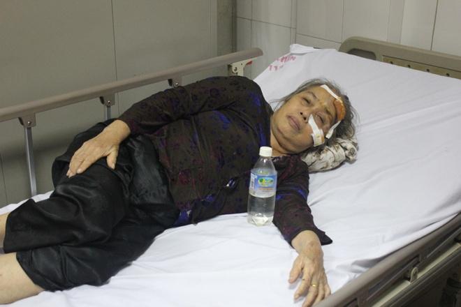 Bà Chính, một trong những người bị thương đang nằm điều trị tại Bệnh viện 115 Nghệ An. Ảnh: N.A.