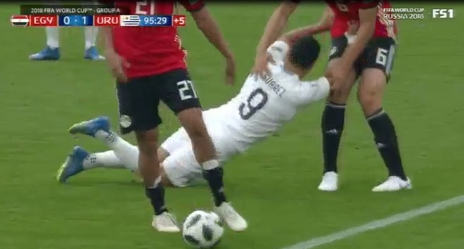 Bi don nga, Suarez co voi tay bop 'cho hiem' doi thu hinh anh