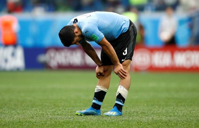 CDV nhi Uruguay khoc sau sai lam cua thu mon Muslera hinh anh 9