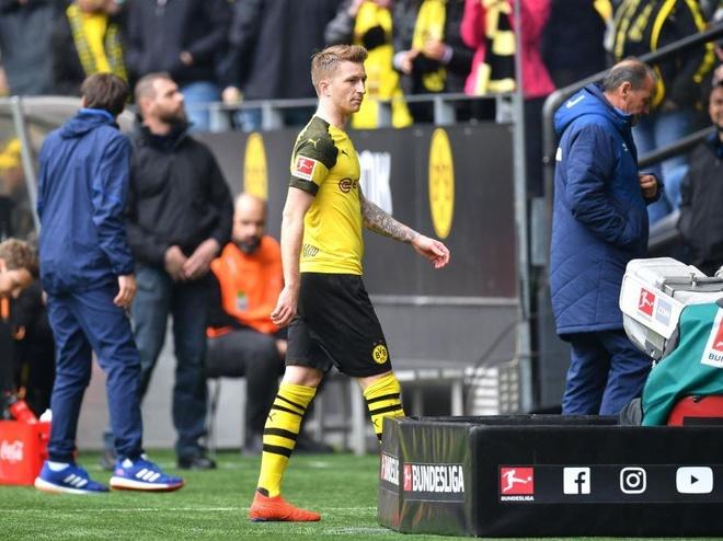 Reus nhan the do, Dortmund dang chuc vo dich cho Bayern hinh anh 2