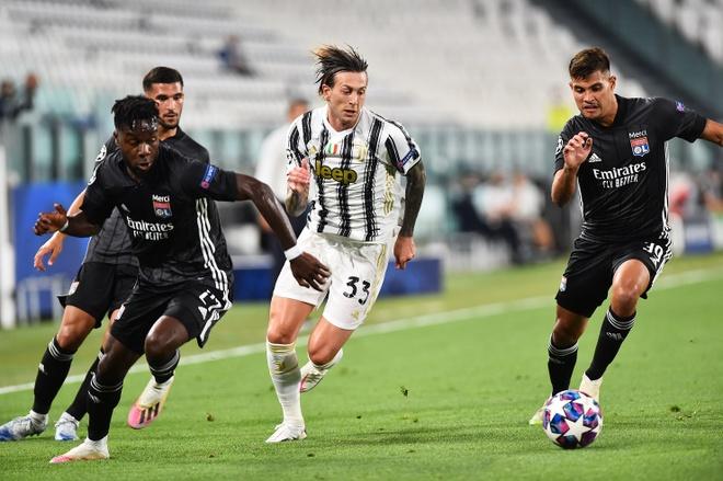 Juventus vs Lyon anh 10