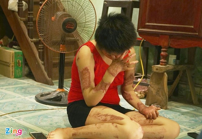 bo truong bo y te,  Nguyen Thi Kim Tien,  co gai bi chong tuoi xang dot anh 1