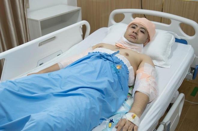 Akira Phan phẫu thuật thẩm mỹ sau khi bị chê xuống sắc, phát tướng