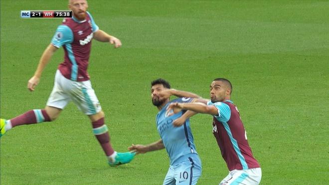 Aguero co the lo hen tran derby Manchester vi an treo gio hinh anh 1