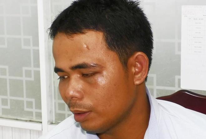 Nam thanh niên dọa tạt axit, chặt tay để tống tiền bạn gái