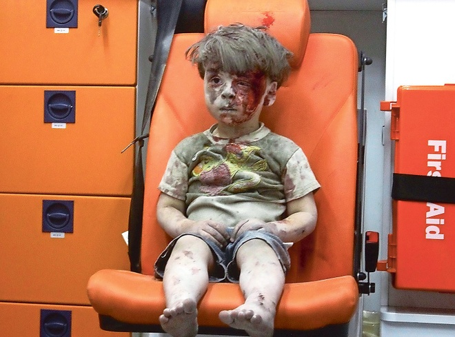 Loat anh ve cau be Syria bi thuong khien dan mang xot xa hinh anh 1
