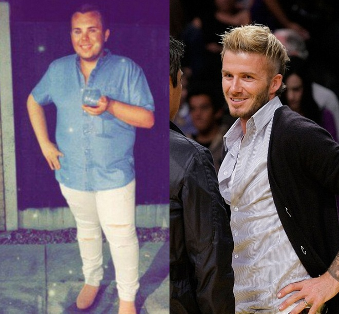 chang trai phau thuat giong David Beckham anh 2