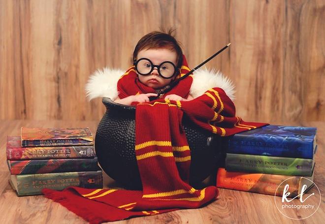 Be gai 3 thang tuoi duoc menh danh Harry Potter nhi hinh anh 2