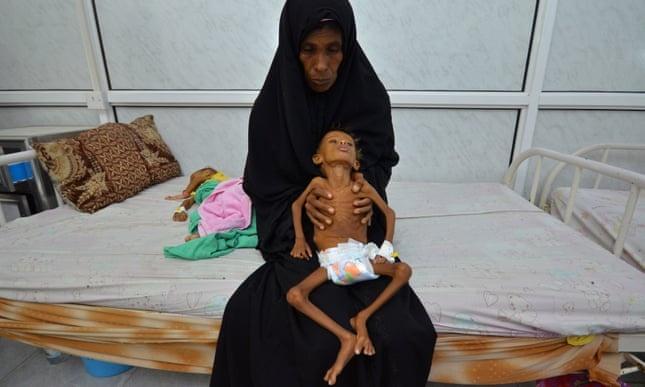 Yemen dung truoc 'nan doi kinh hoang nhat lich su nhan loai' hinh anh